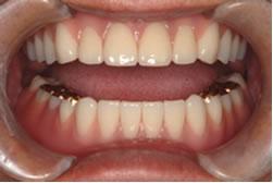 痛くない入れ歯、外れない入れ歯の調整2