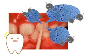 歯石プラークむし歯