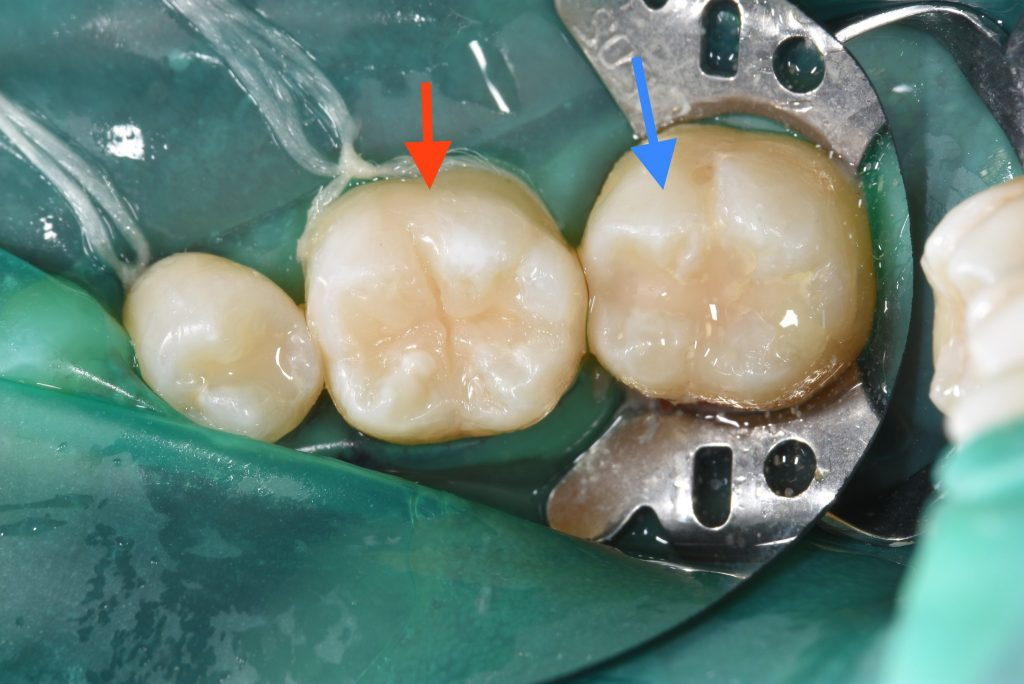 コンポジットレジンの白い歯