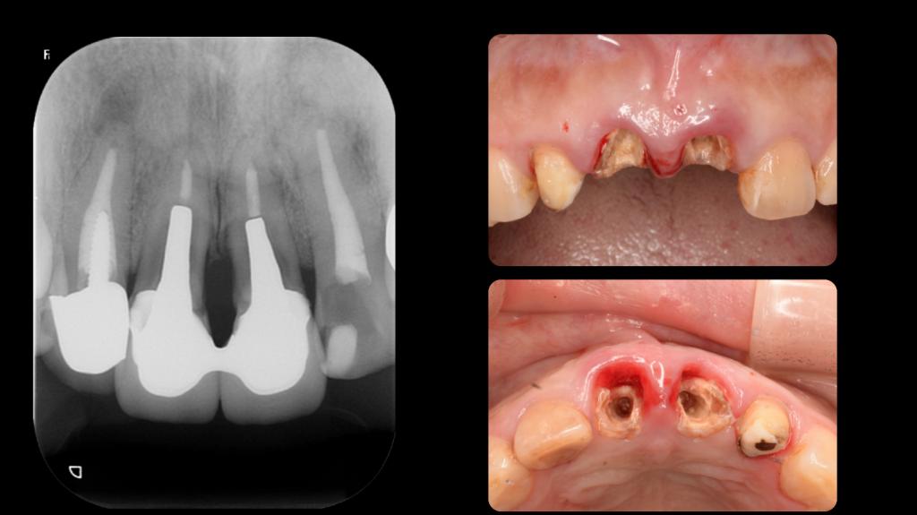 前歯部インプラントひろた哲哉歯科