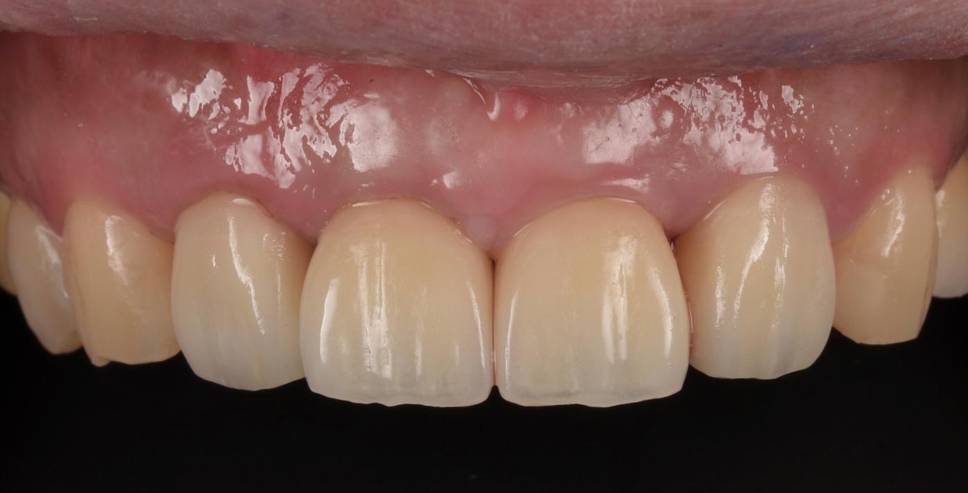 福岡市歯科インプラントの写真症例