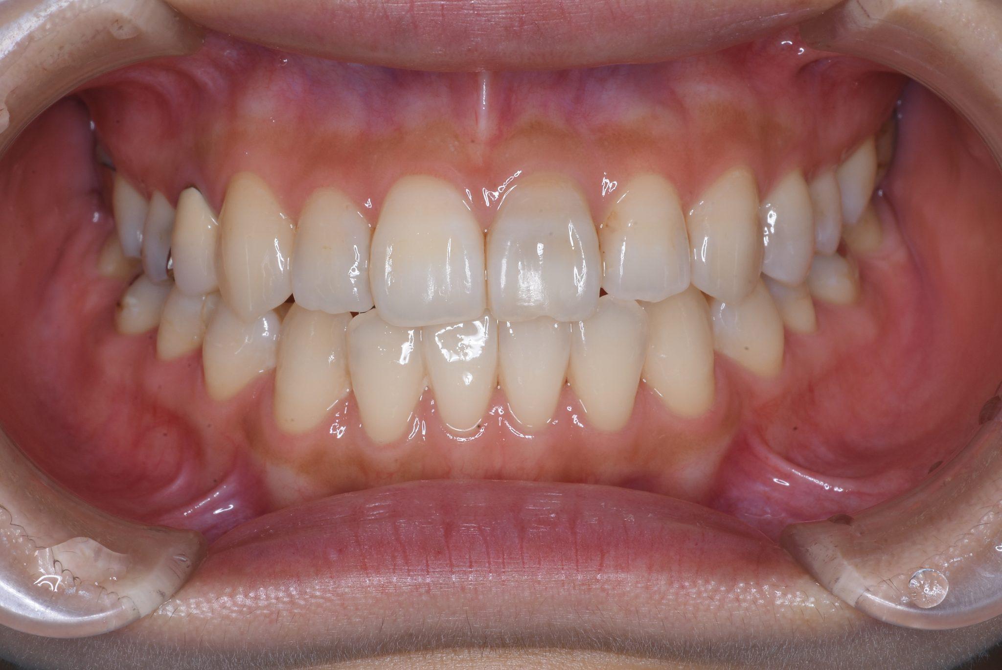前歯部変色症例 福岡市南区老司の歯医者なら「ひろた哲哉歯科」