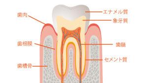 違い 知覚 過敏 虫歯